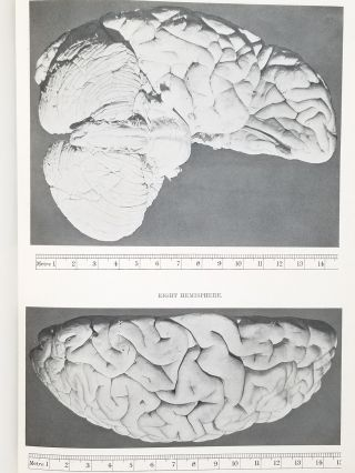 Description of the Brain of Mr. Charles Babbage, F.R.S.