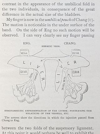 Report on the Autopsy of the Siamese Twins, Together with Other Interesting Information Concerning Their Life